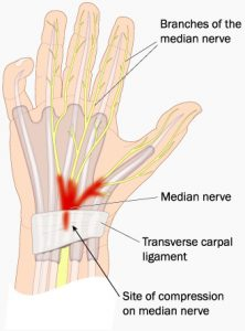 Nerves in the hand diagram