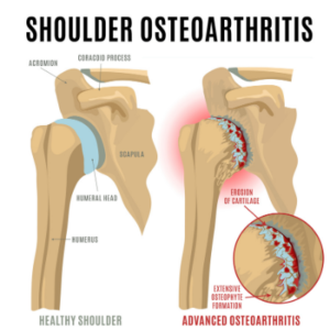 Shoulder arthritis diagram